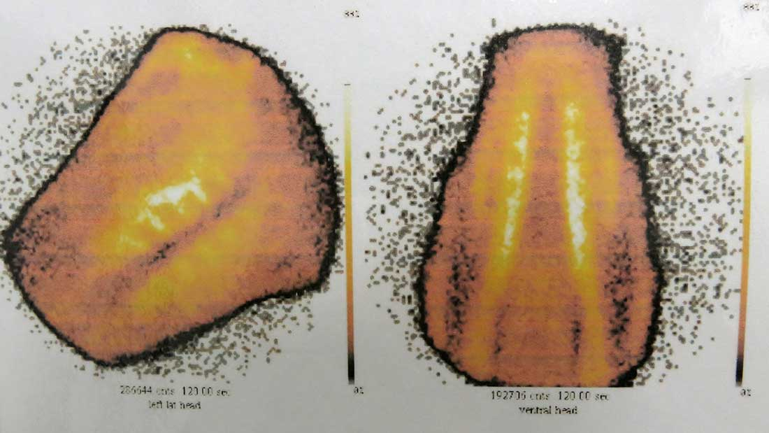 Scintigraphy-imaging2